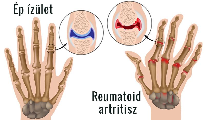 kéz lornet reumatoid artritisz