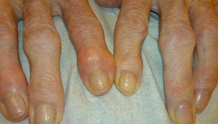 a csípőízület osteochondrozisának gyógyszerei váll fájdalom kezelésére