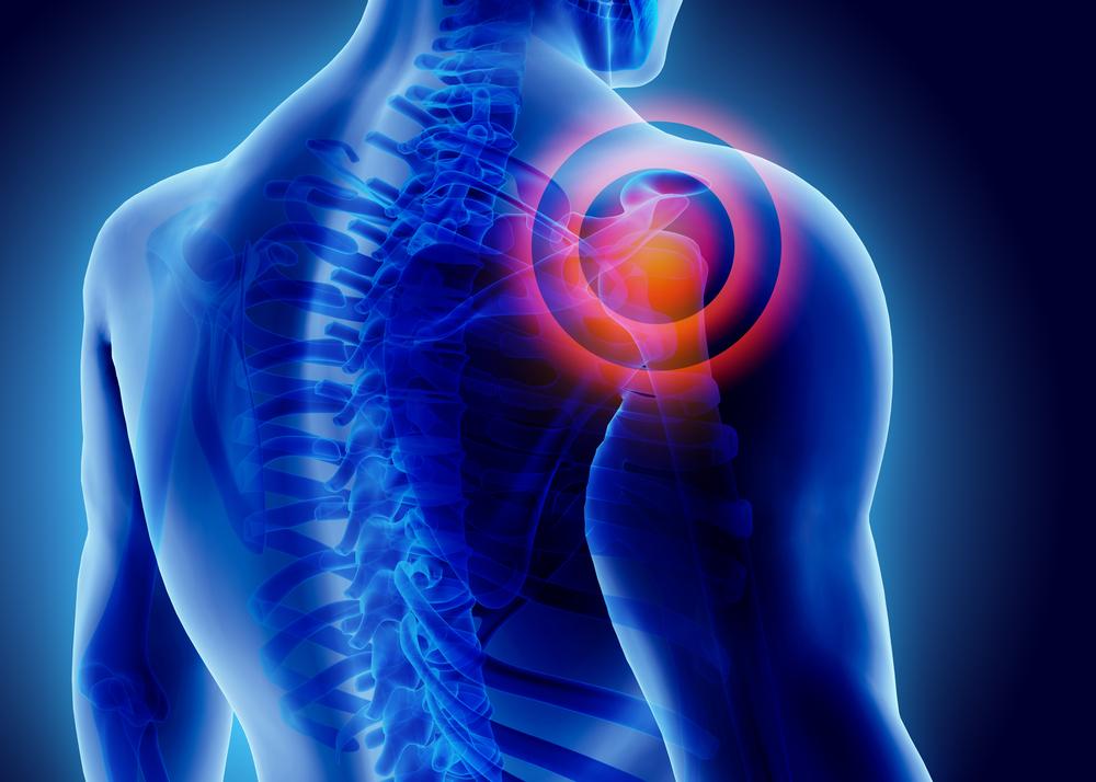 gyorsan távolítsa el a vállízület fájdalmát