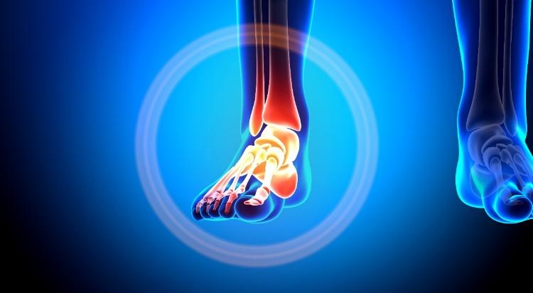 lábfájdalom bokaízület)