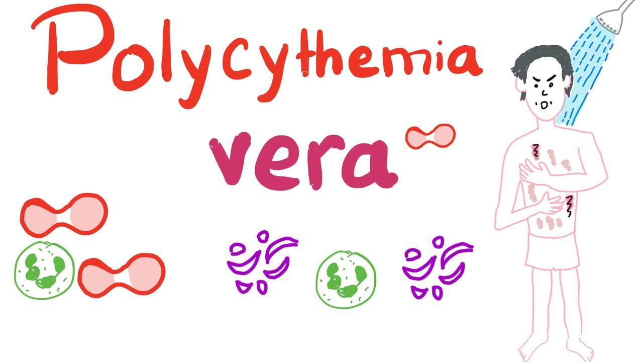 ízületi fájdalom polycythemia)