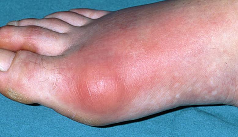 ízületi gyulladás a lábon