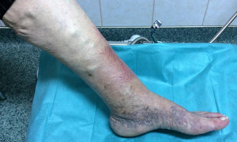 Lábhát és boka fájdalmak, bokaduzzanat, sérülés utáni állapotok