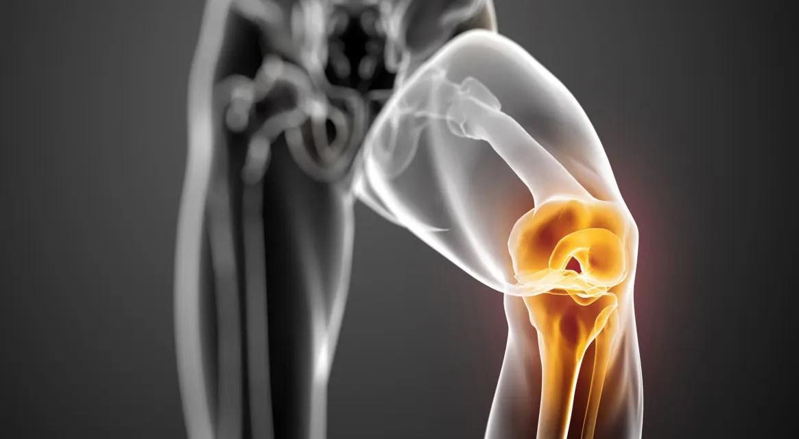a térdízület belső oldalsó ligamentuma