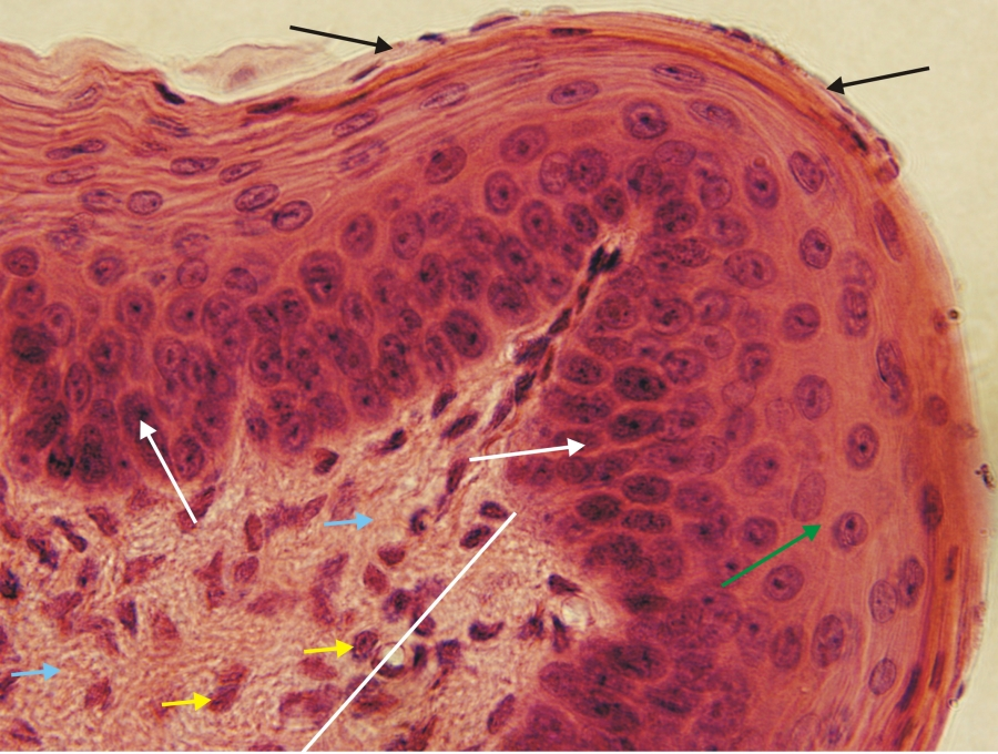 a kötőszövet megfelelő regenerálása