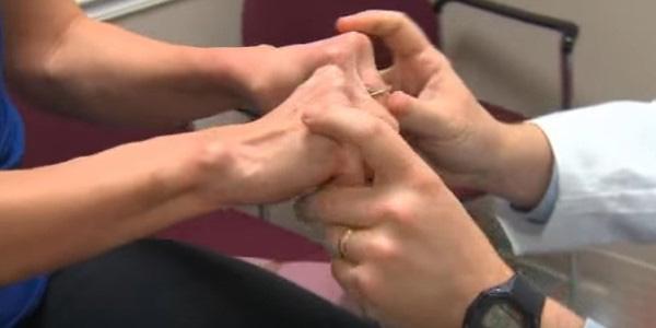 Deformáló arthritis ujj gyalog