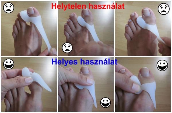az első fokú lábujjak artrózisának kezelése)