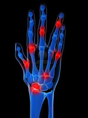 a kéz ujjainak ízületei fájnak reggel