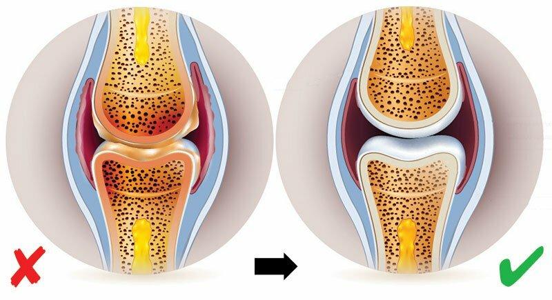 a térd ízületi gyulladása fenntartja a kezelést