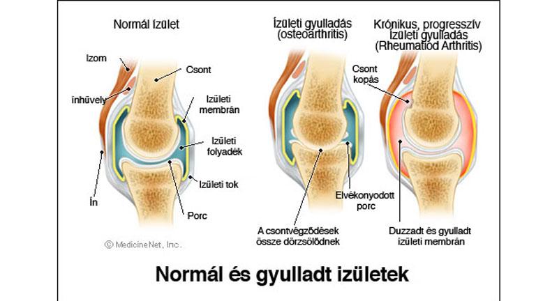 ízületi betegség csípő hideg ízületi fájdalom nélkül
