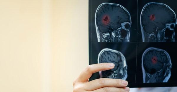 ízületi fájdalom ischaemiás stroke után
