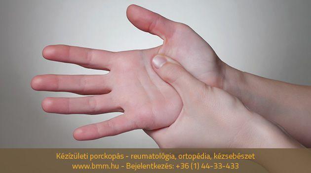 hogyan kezeljük a kézízületeket miért fáj az ízületeim