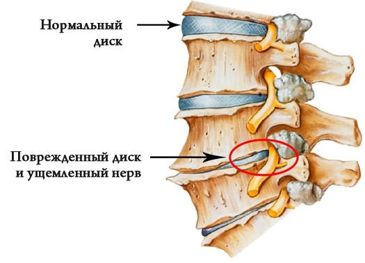 artrózis és a bokaízület deformáló artrózisa)