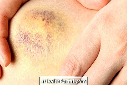 a térd artrózisának súlyosbodása