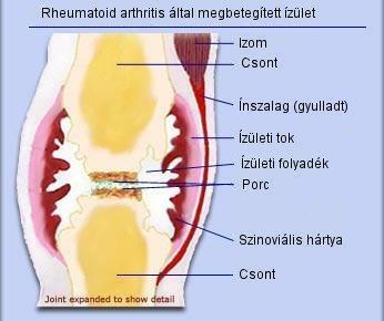 milyen ízületek fájnak a rheumatoid arthritisben