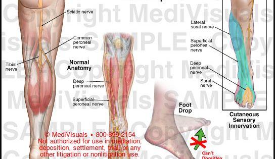 a boka-lábízület ízületi gyulladása fájdalom az ülőidegből a csípőízületben