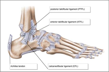 fájó ligamentumok boka kezelése)