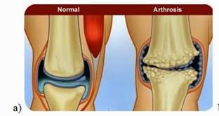 a térd első fokú artrózisának kezelése