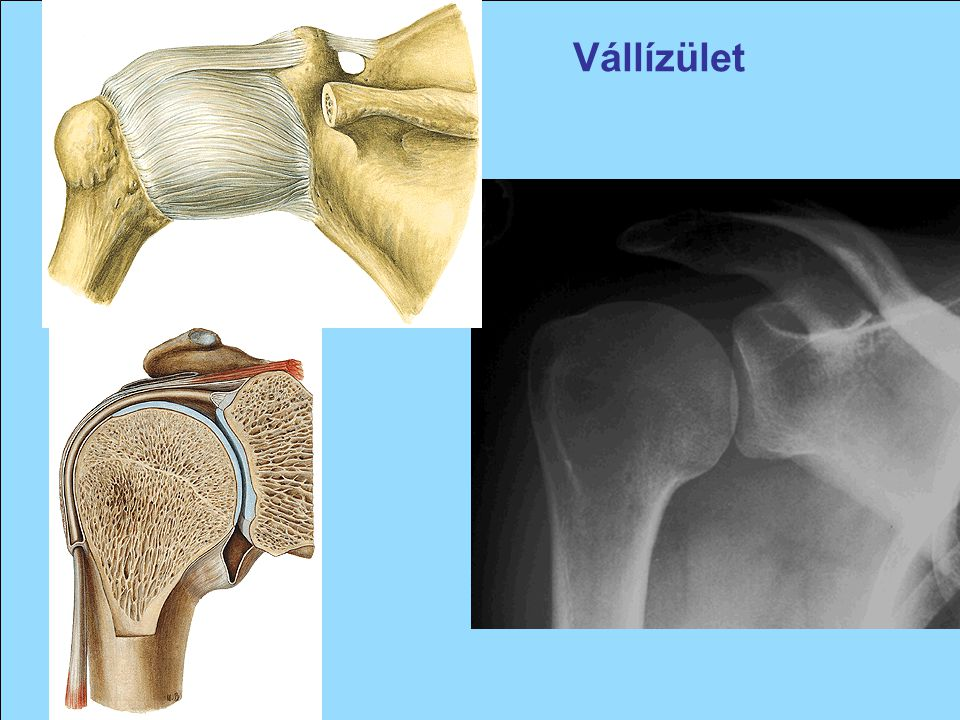 midocal a vállízület artrózisában