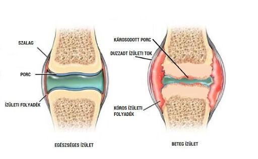térdízület ízületi kezelése 2-3 fokos