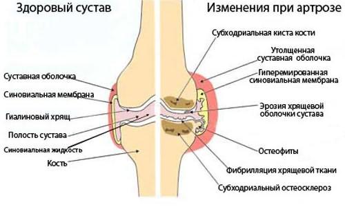 a boka deformáló ízületi gyulladásának kezelése)