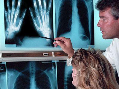 az artrózis legjobb gyógyszere