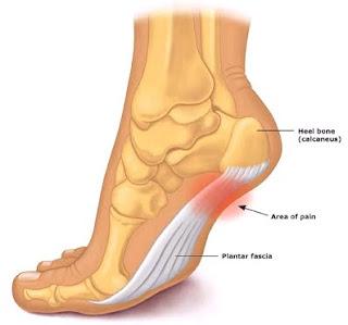 az ízületek hypothyreosisban szenvednek nodularis artrosis a kezek kezelésében