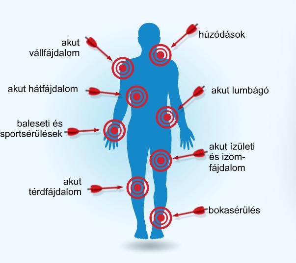 1 ujj carpal-metacarpalis ízületi ízületi gyulladása