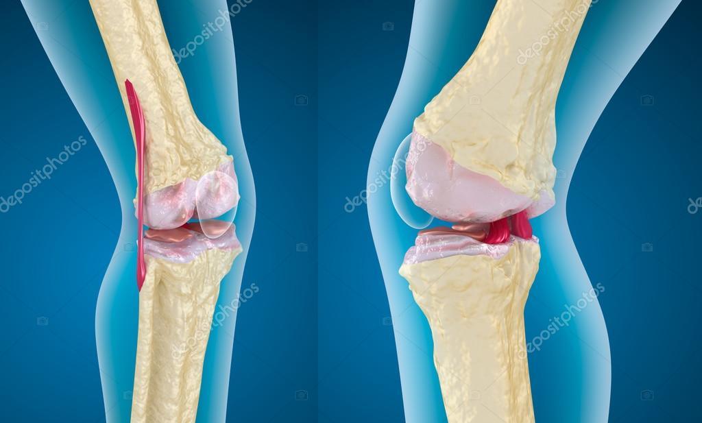 térd osteoporosis