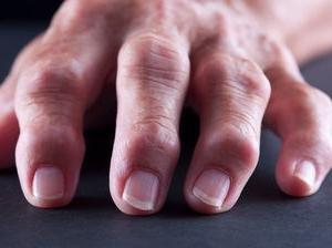időszakos bokaízület fájdalom