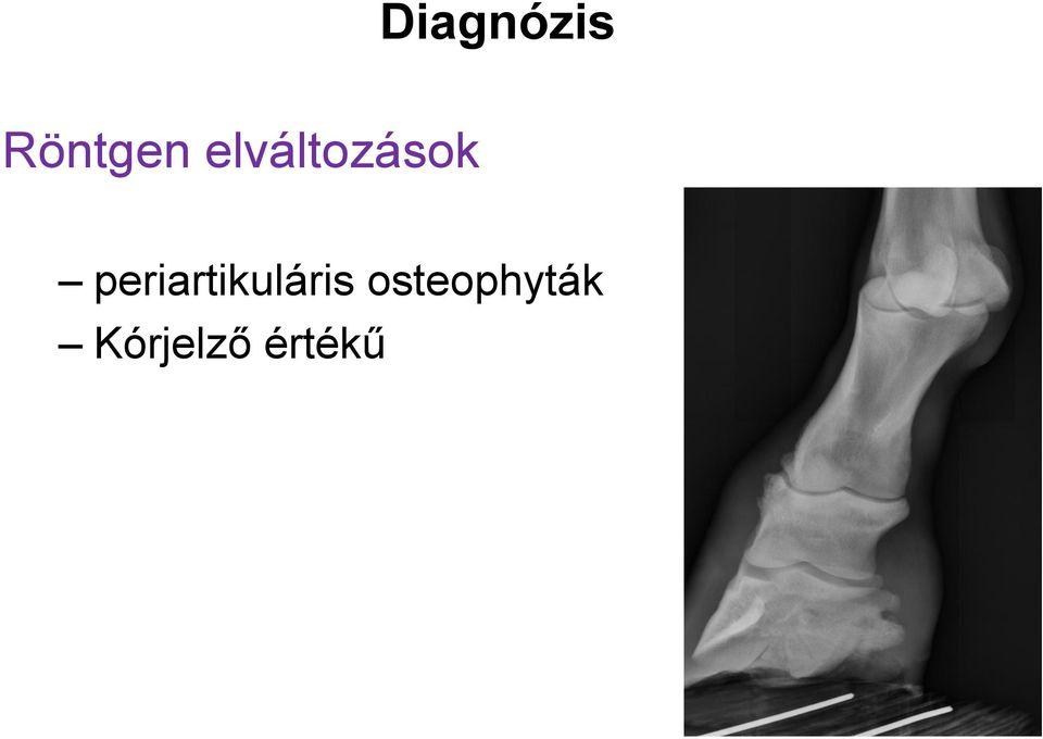 térd radiográfia rheumatoid arthritisben