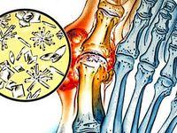 Ízületi gyulladásra, ízületi fájdalomra házilag készített gyógykenőcs