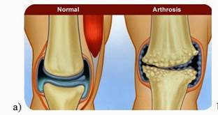gyógynövények térd artrózisának kezelésére