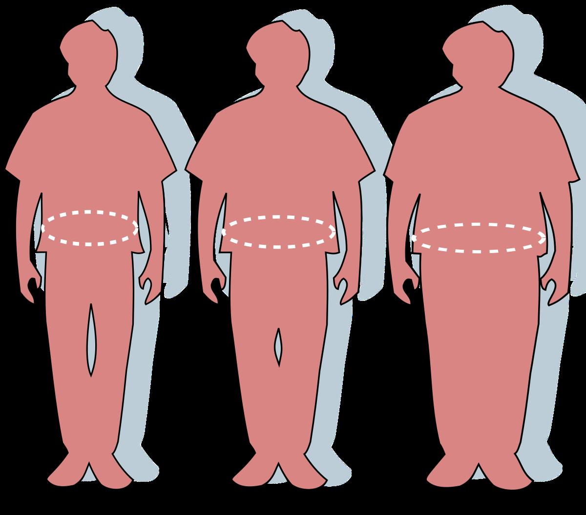 elhízás és ízületi betegségek)