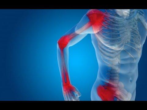 ac izületi arthrosis térdízületi kenőcskezelés