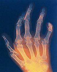 ízületi gyulladás artritiszben)