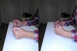 a kezek ízületeinek zsibbadása