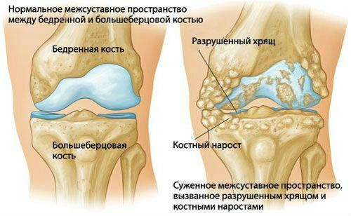 térdízületi gyulladás kezelése saki sárral)