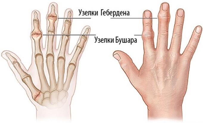 ujjízület diszlokáció kezelése)