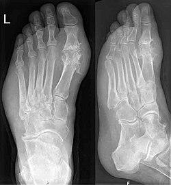 fájdalom a borjúízületben a kéz ízületi gyulladása hogyan kezelhető