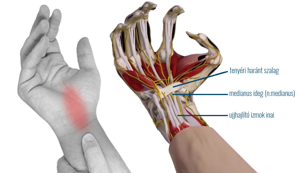 Kézfájdalom – a kéz és a csukló fájdalmának okai 2.rész