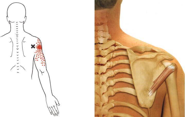 az ágyéki artrózis osteochondrozisának kezelése)