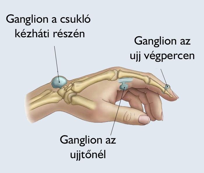 duzzadt ízületek a kezén a csípőízület fáj, és térdre ad