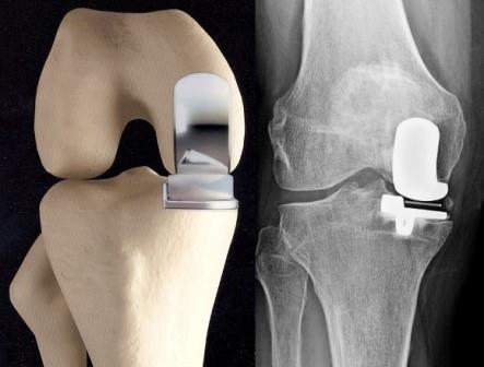 fájdalom térdízület artrózisával, hogyan lehet enyhíteni a fájdalmat