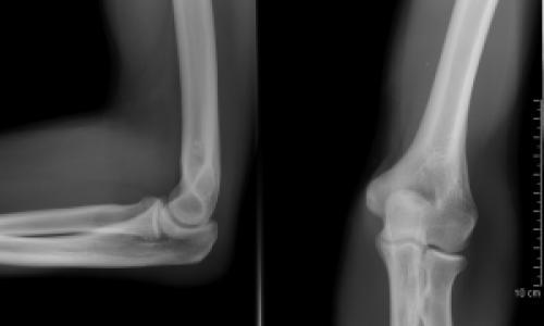 brachialis artrózisos gyógyszeres kezelés