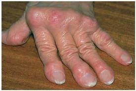 Ízületi gyulladás (reumatoid artritisz) - EgészségKalauz