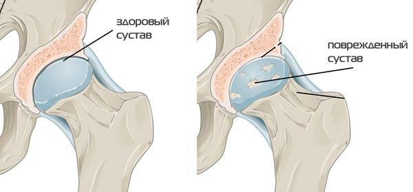 csípőízületek artrózisa 3 fok