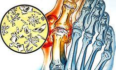 olga butakova ízületi betegség