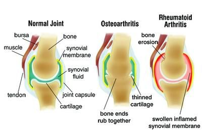 Reumatoid artritisz és artrózis