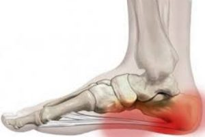 Gyógycsontok: a lábbetegségek kezelése és jellemzői - Kezelés
